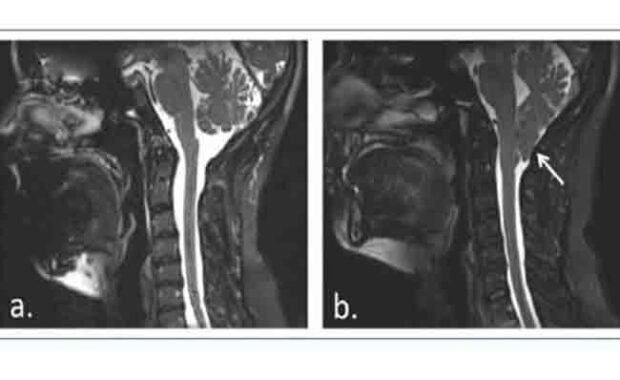 Chiari Malformation Type I: A Clinical Case